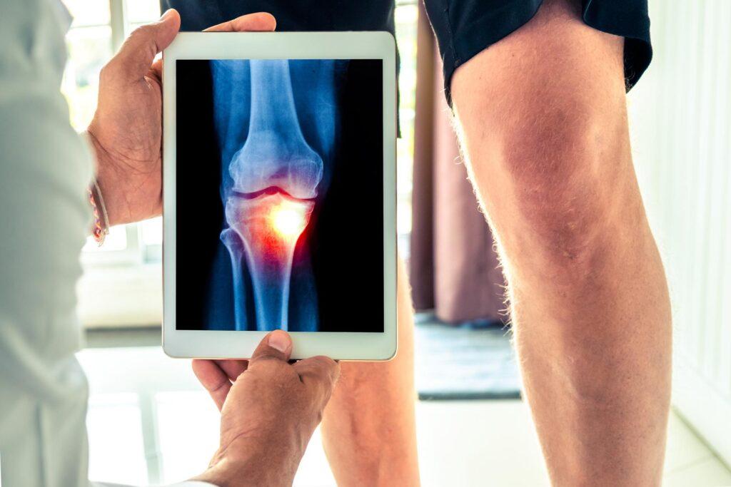 Maladies pouvant accompagner l'arthrose