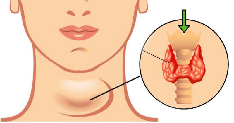 L'hypothyroïdie thyroïdienne est un problème qui touche une grande partie de la population.