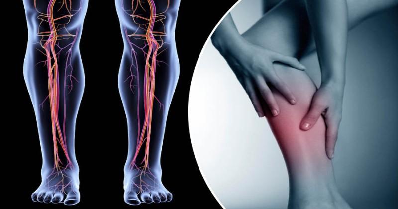 Thrombose - Symptômes - traitement - diagnostic - causes