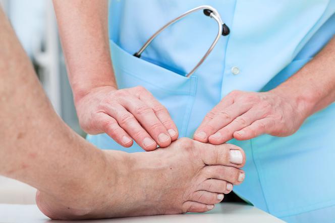 Si vous remarquez des halluxes, consultez un spécialiste et commencez le traitement.