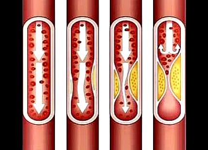 L'athérosclérose attaque les artères et entrave la circulation sanguine.