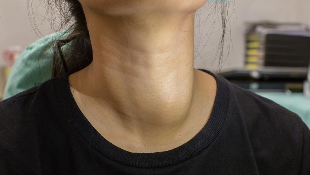 Hyperthyroïdie -Symptômes - traitement - diagnostic - causes
