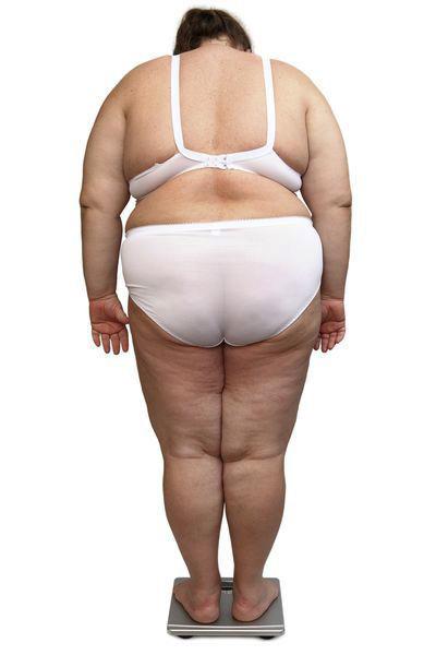L'obésité rend la vie quotidienne beaucoup plus difficile : elle entraîne souvent une dépression profonde.