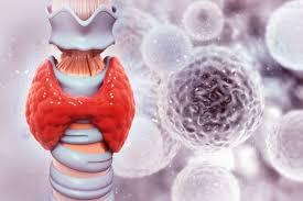 Le cancer de la thyroïde peut prendre de nombreuses formes différentes