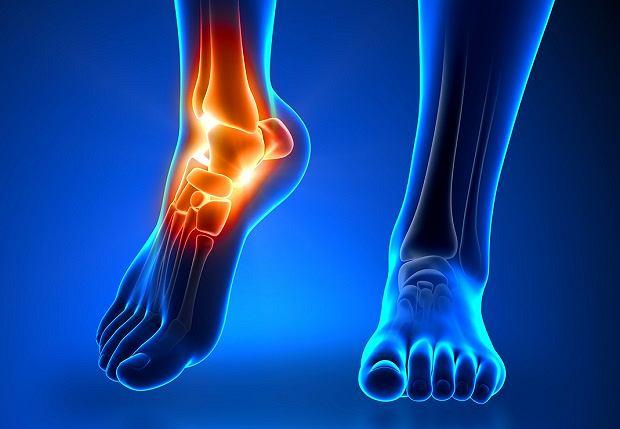 Tordre le joint - Symptômes - traitement - diagnostic - causes