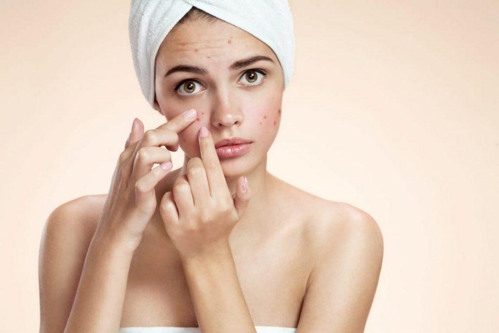 Mécanisme de formation de l'acné vulgaire