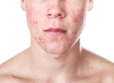 Il existe de nombreuses variétés de rosacée d'acné