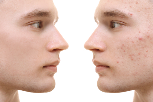 Acné rosacée - Symptômes - traitement - diagnostic - causes