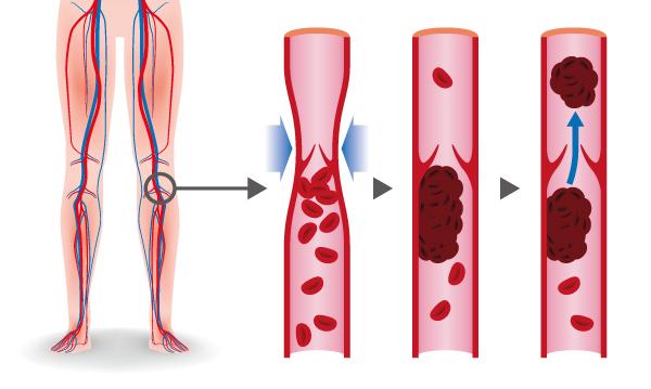 Si la thrombose n'est pas traitée, elle peut avoir des conséquences dangereuses.